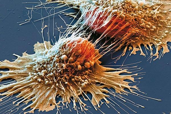 celija-raka-pluca-deoba
