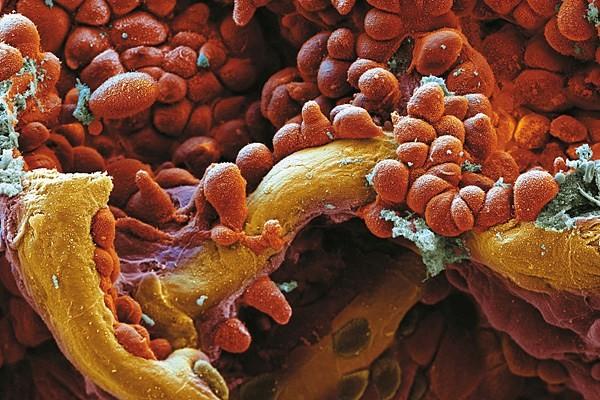 celija-raka-pluca