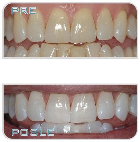beljenje-zuba-1