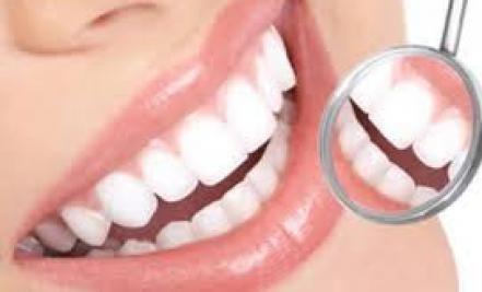 beljenje zuba Veliki osmeh