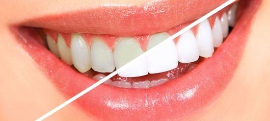 Parodontax pasta za zube sastav