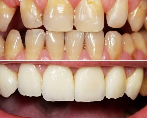 stomatoloska-ordinacija-dentix-novi-sad-3