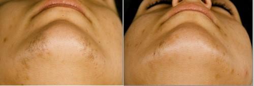 laserska epilacija-lica-profesional-beauty-zrenjanin-1