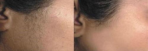 laserska epilacija-lica-profesional-beauty-zrenjanin-2